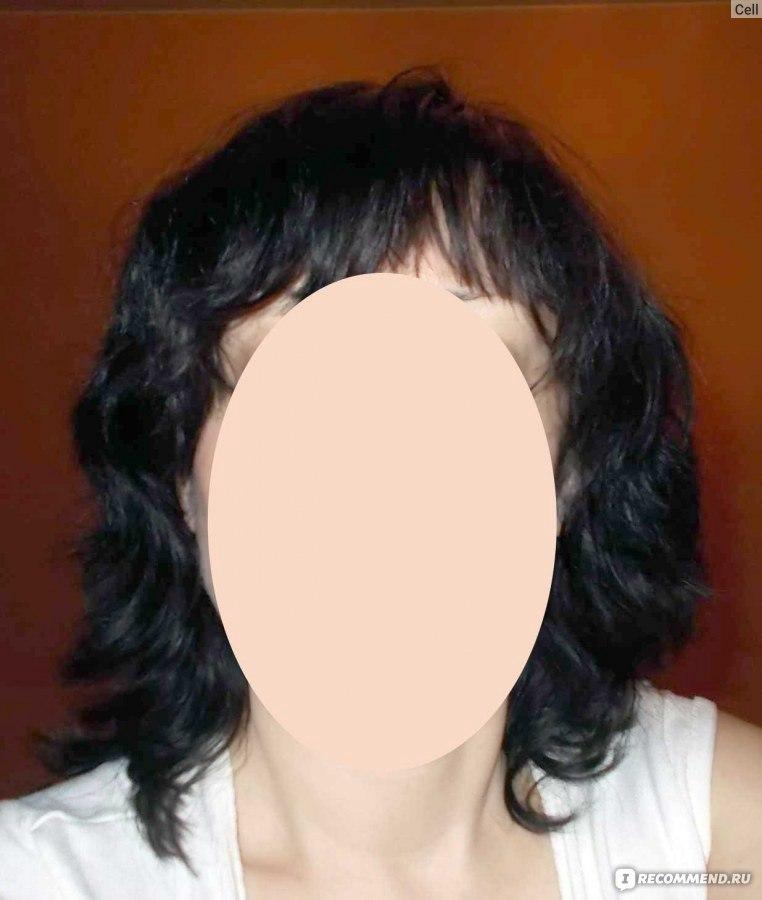 Я победил выпадение волос