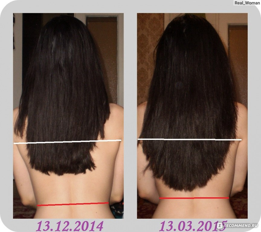 Народное средство от выпадения волос у девочек