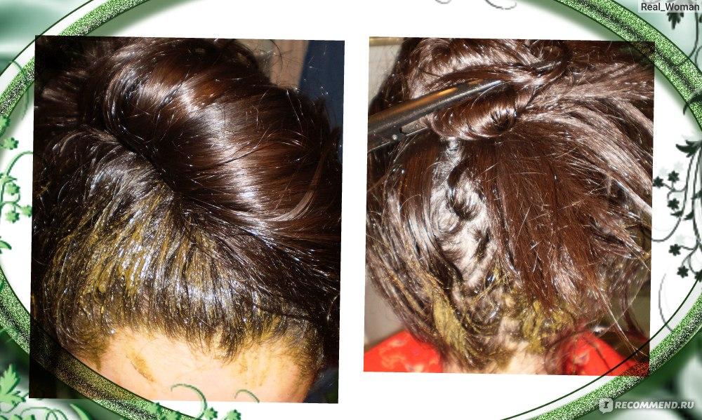 minoxidil kirkland 5 лосьон для роста волос отзывы