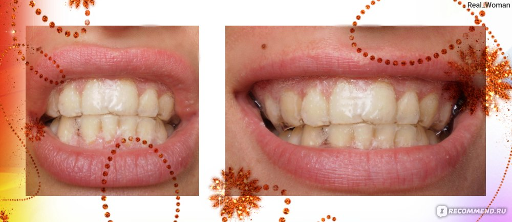 Отбеливание зубов global white отбеливающий карандаш купить