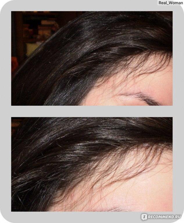 дермароллер и миноксидил для бороды