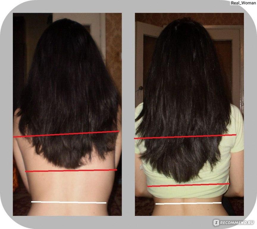 Как отрасти волос в домашних условиях 725