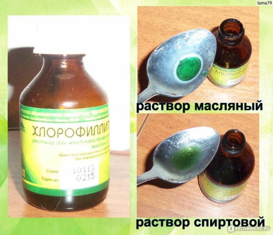 Лечение стафилококка в носу в домашних условиях быстро