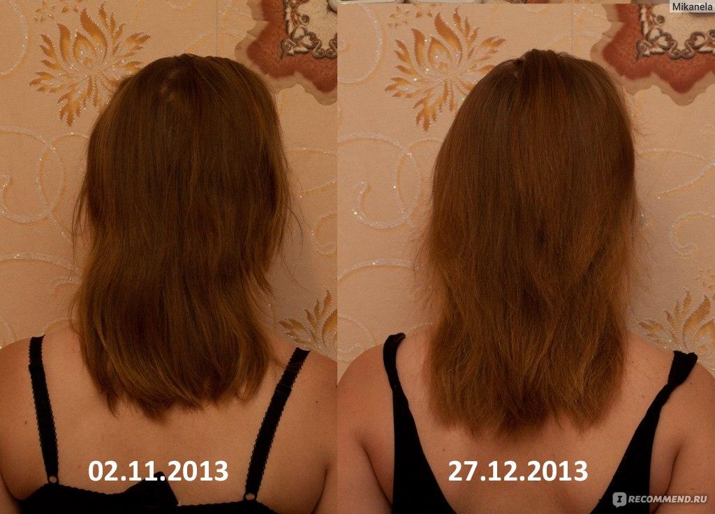Чем отрастить волосы в домашних условиях 410