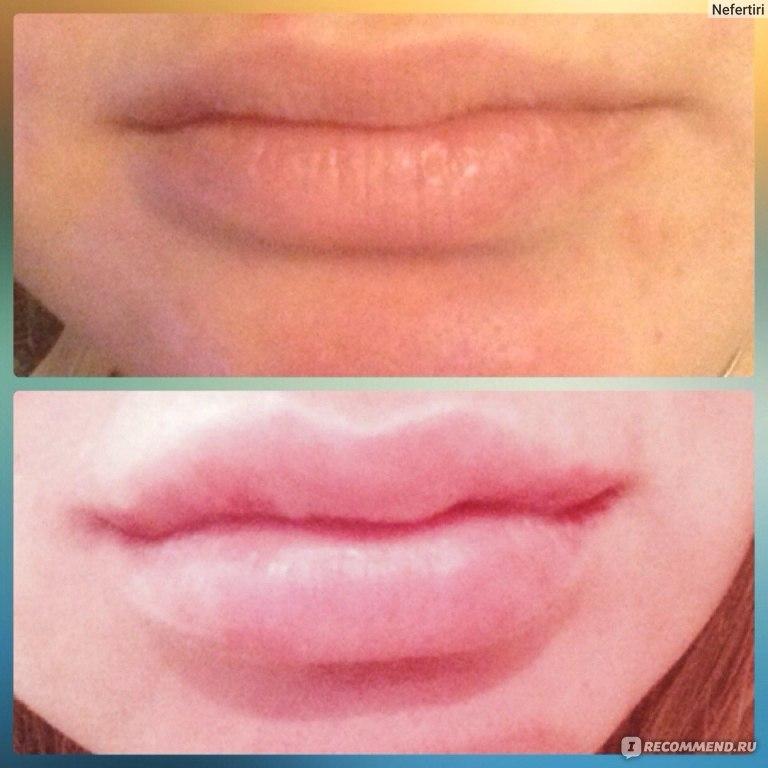 Чем можно мазать губы после увеличения