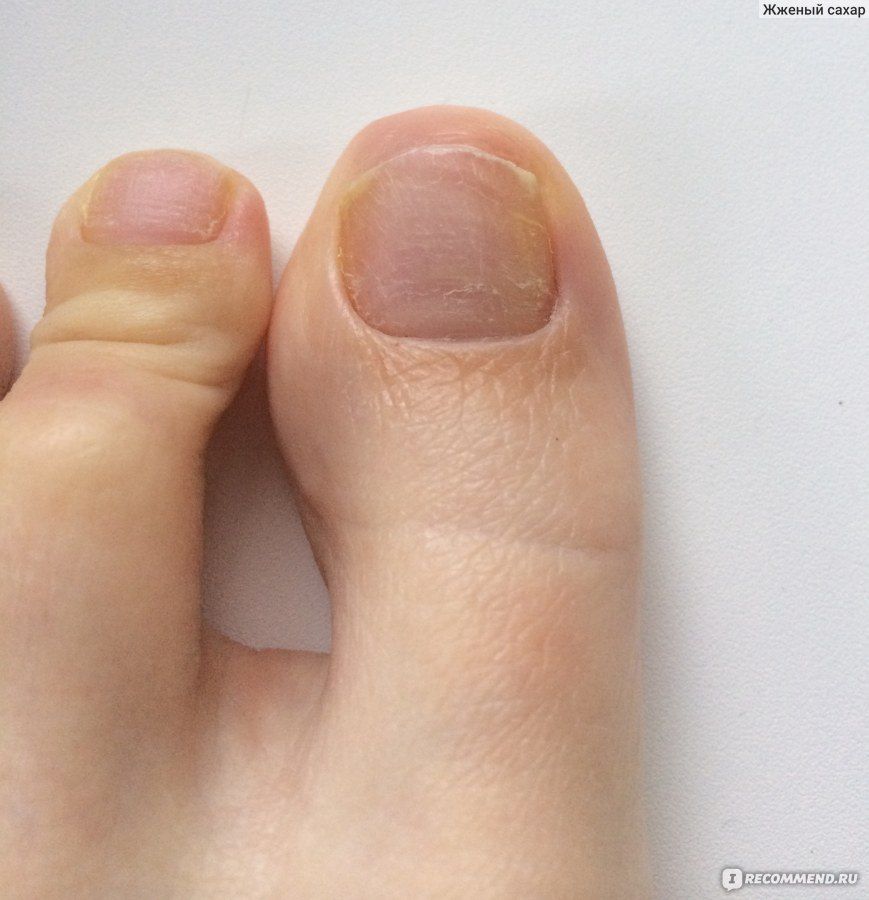 Что сделать чтобы сошел ноготь на ноге