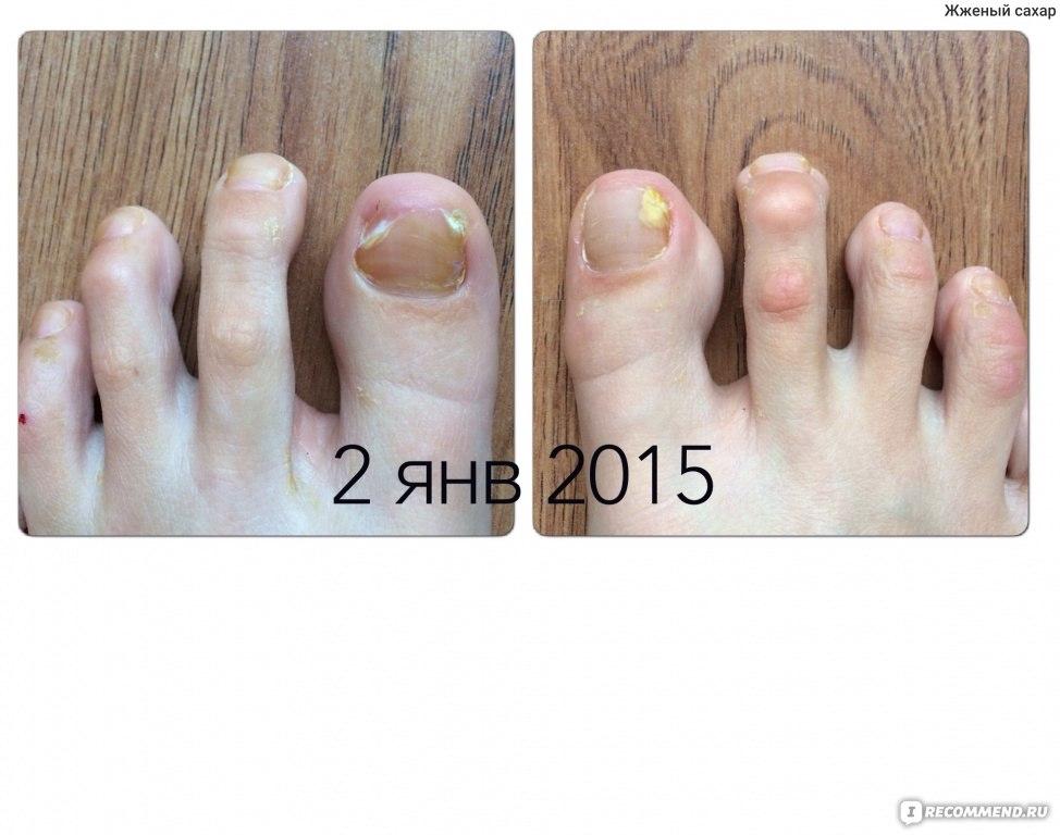 Микозы стоп грибок ногтей и кожи стопы лечение фото