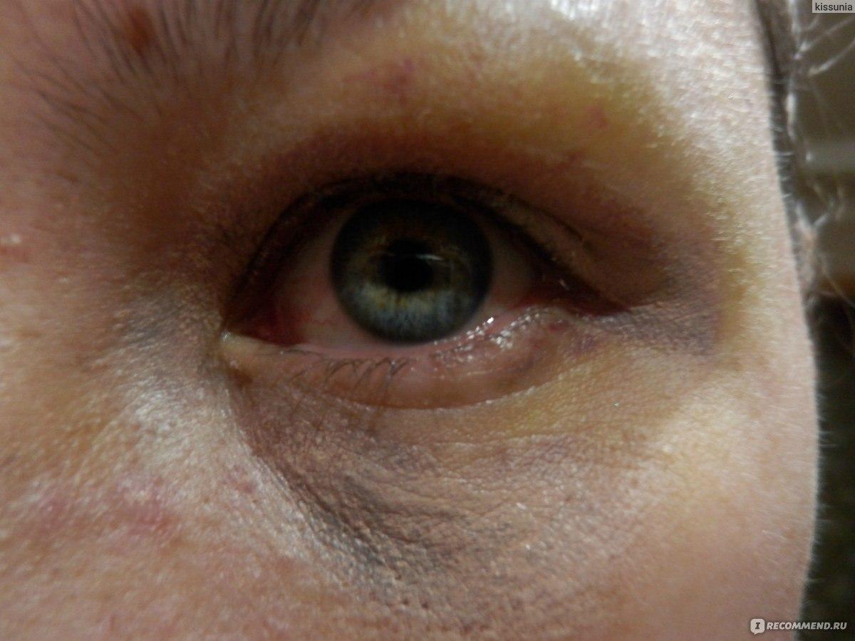 Синяк глазом лечение в домашних условиях 145