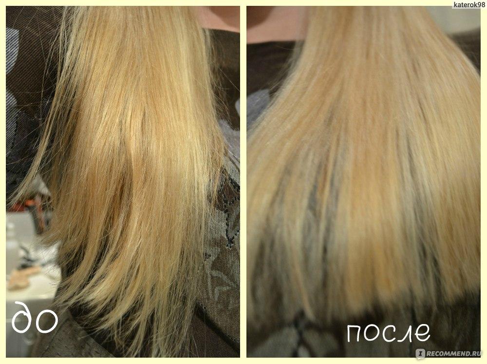 форкапил для волос