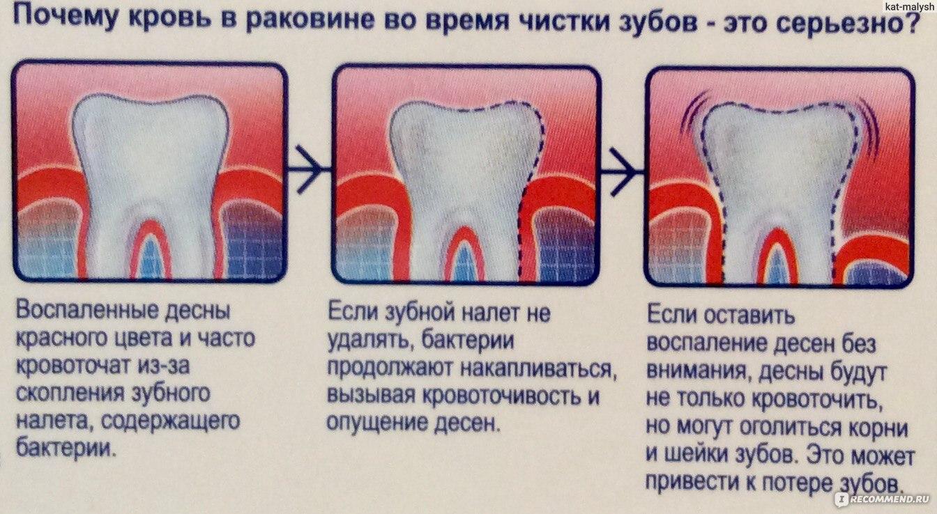 Что делать если воспалился корень зуба в  50