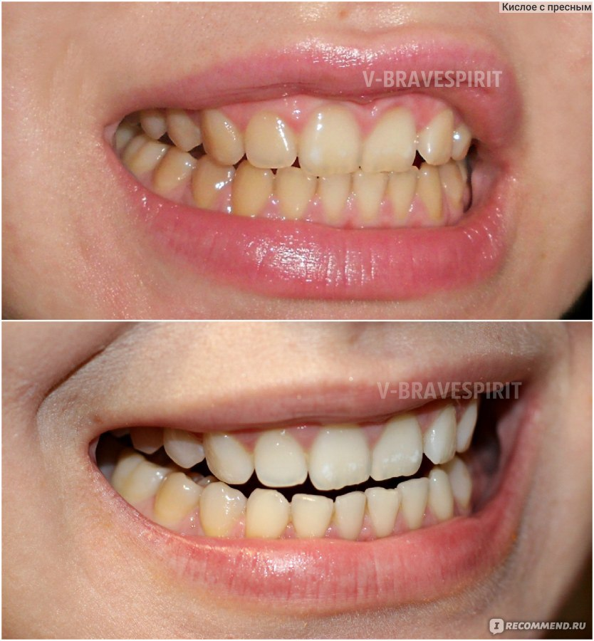 supreme отбеливание зубов