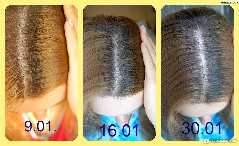 Как сделать маску чтобы волосы быстро росли