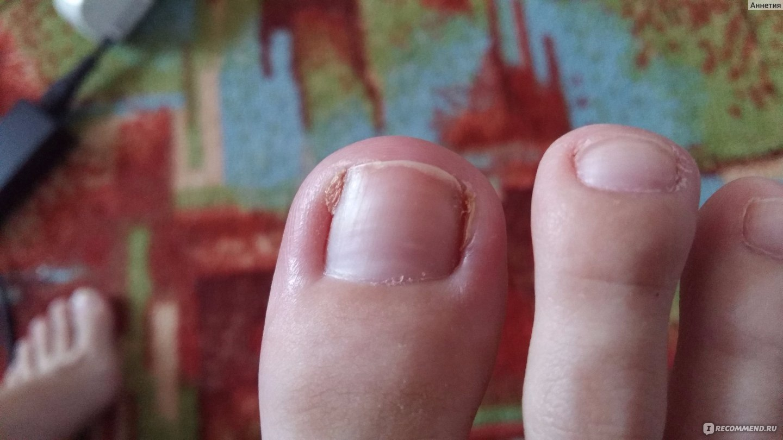 Почернел ноготь на большом пальце левой ноги
