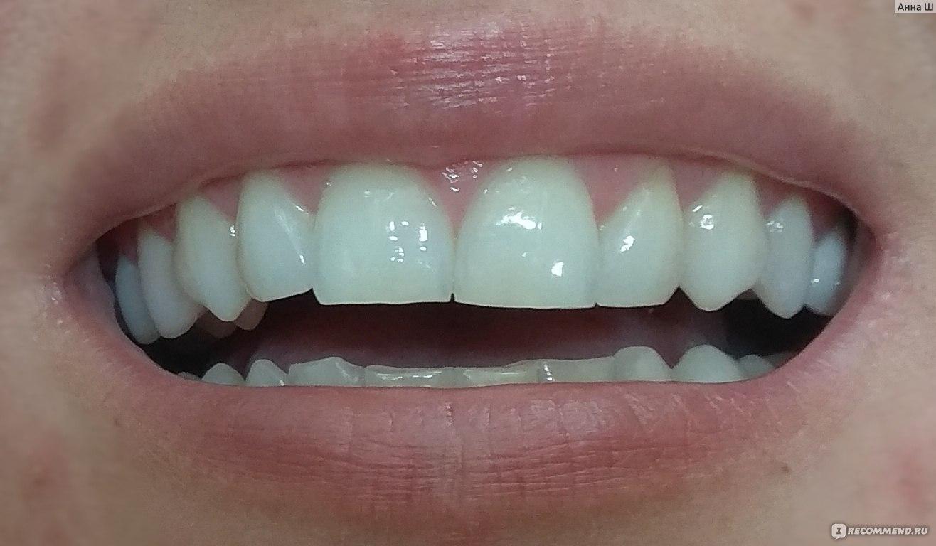 Отбеливание зубов перекисью фото
