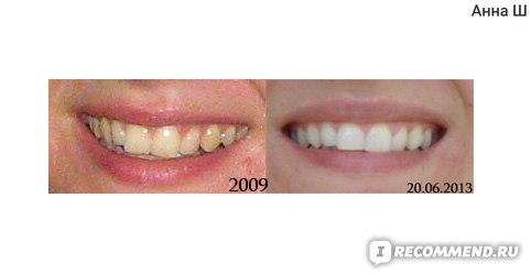 отбеливание зубов шприцы