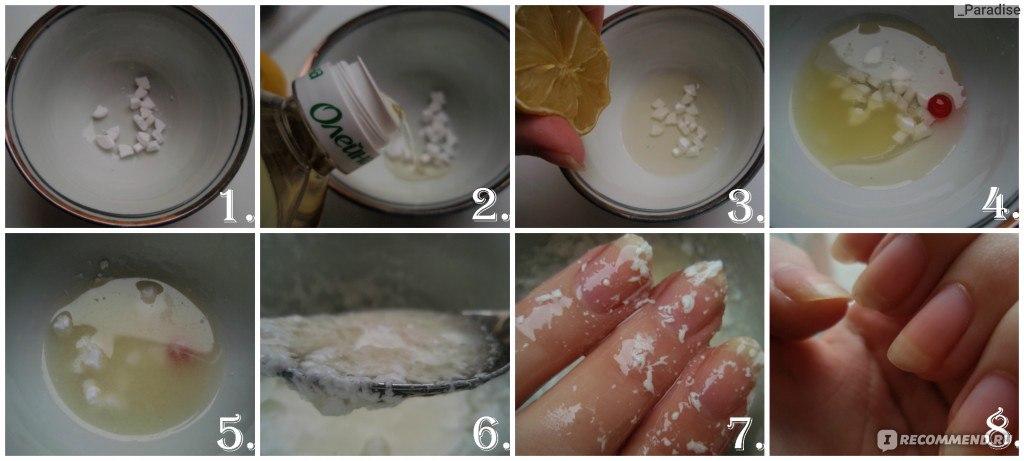 Кальция хлорид и грибок ногтей