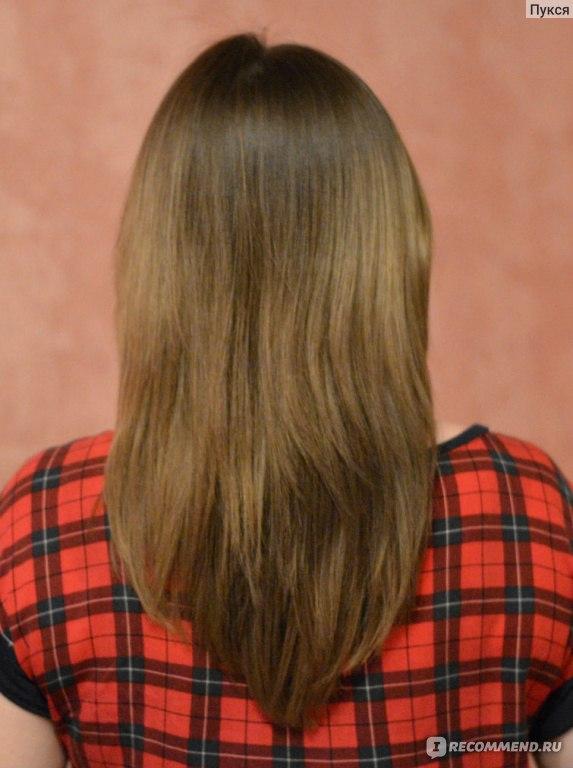 Пересадка волос с другого человека