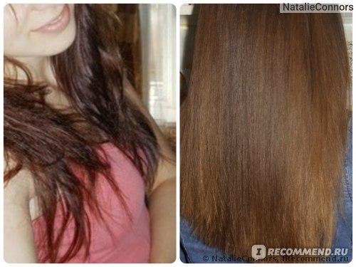 волосы уже на второй день становятся грязными в чем дело