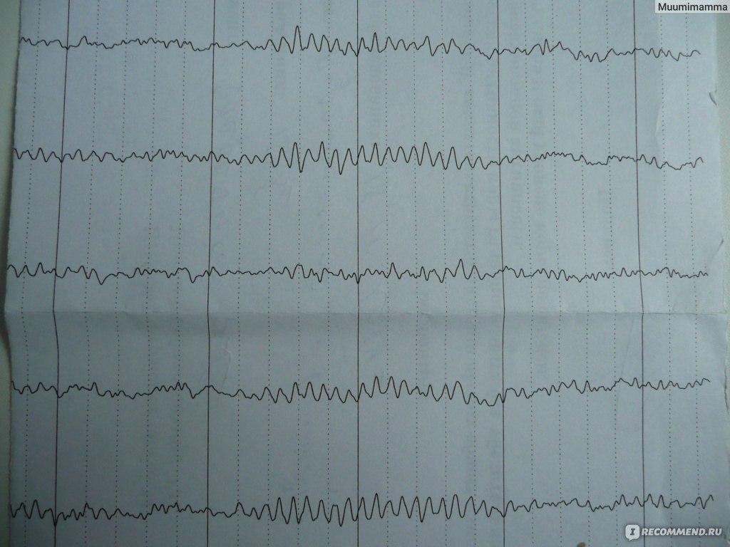 Что такое электроэнцефалография: показания к исследованию
