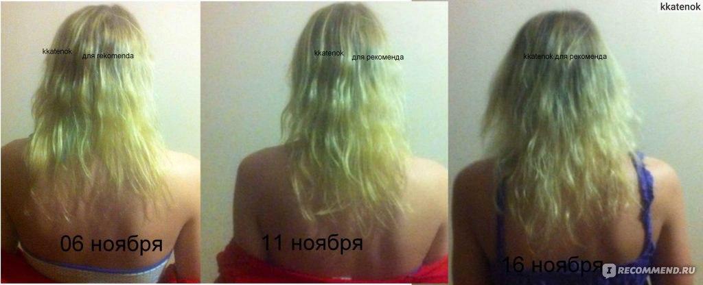 отращиваем волосы до и после фото