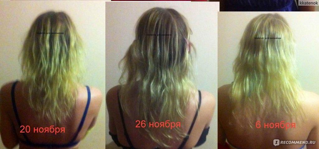 Средства быстро отрастить волосы в домашних условиях 859