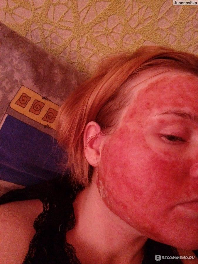 Ожог на лице от спирта