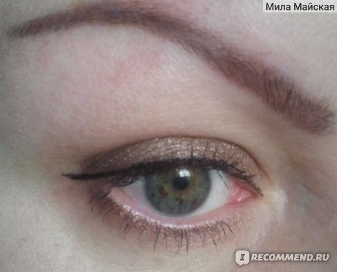 аллергия на тени для век фото