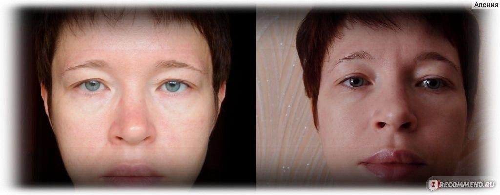 Евгения баглык фейсбилдинг фото до и после