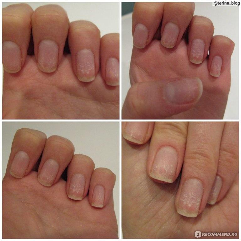 Почему болят ногти после снятия гель лака