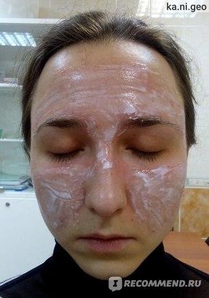 Бепантен после пилинга лица
