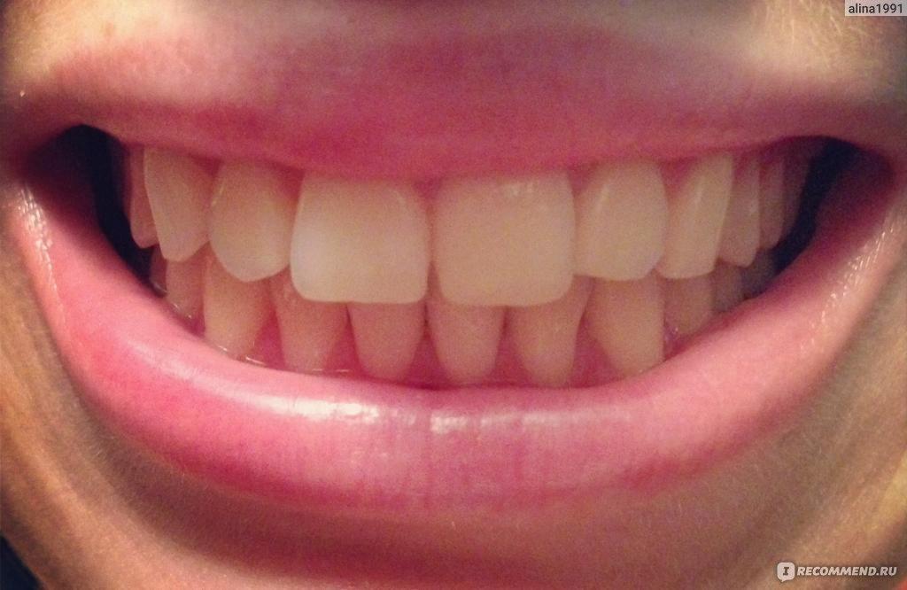 паста после отбеливания зубов