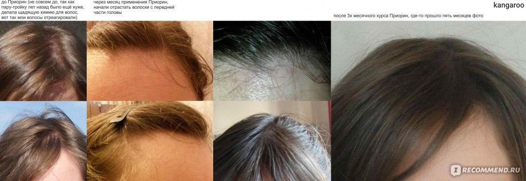 Приорин для роста волос купить