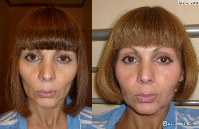 липофилинг лица отзывы фото до и после