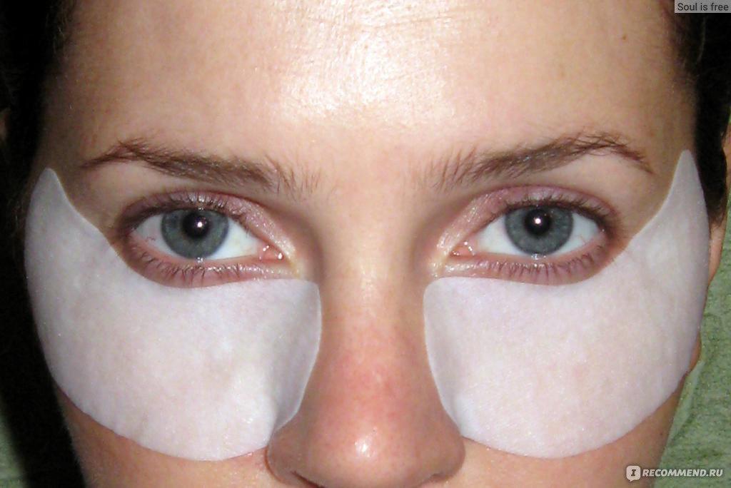Как быстро вывести синяки под глазами в домашних условиях