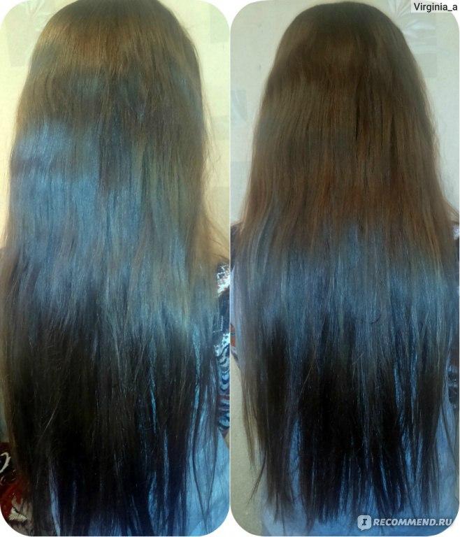 Масле народные средства для роста волос отзывы
