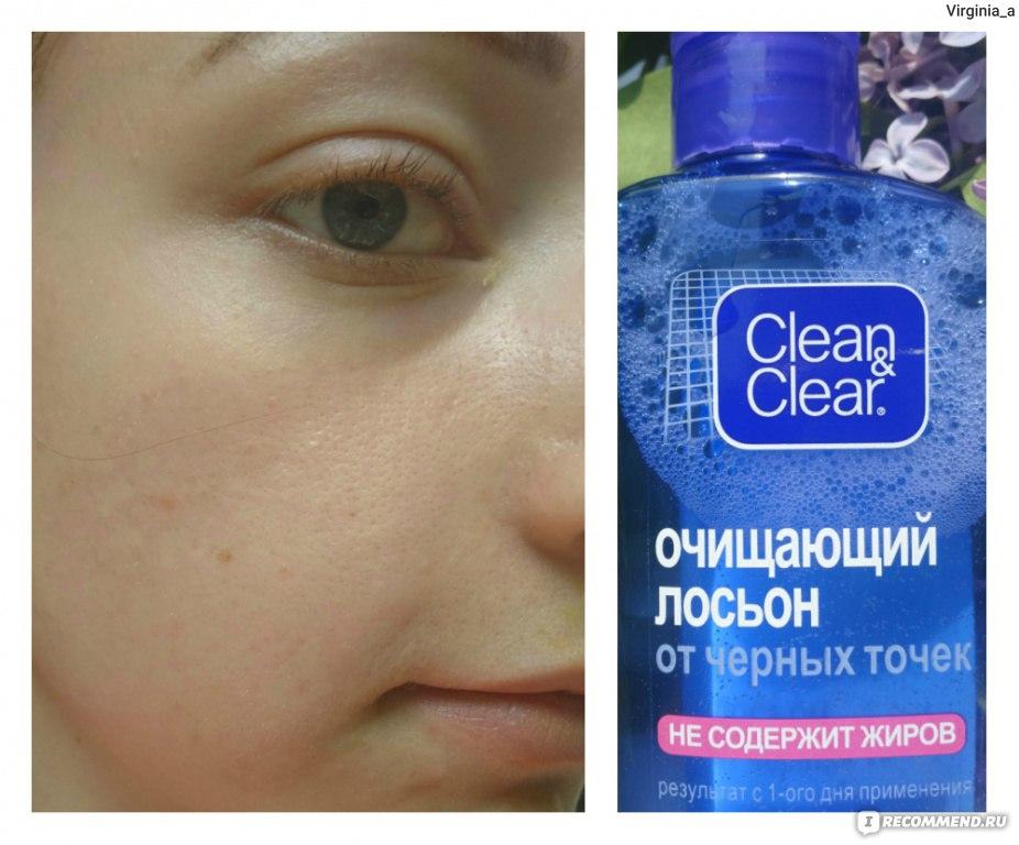 Как чистить лицо от чёрных точек в домашних условиях