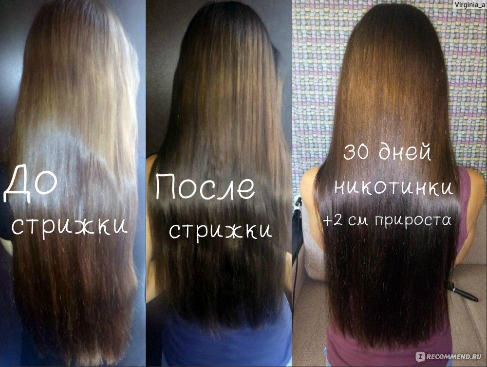 Народные средства от облысения для роста волос