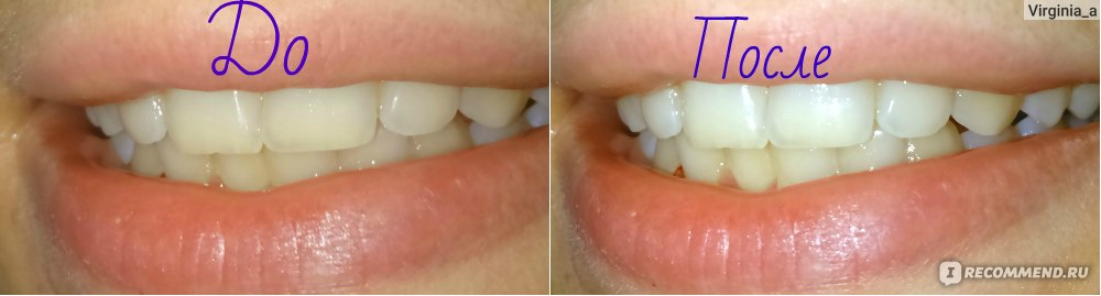 курение после отбеливания зубов