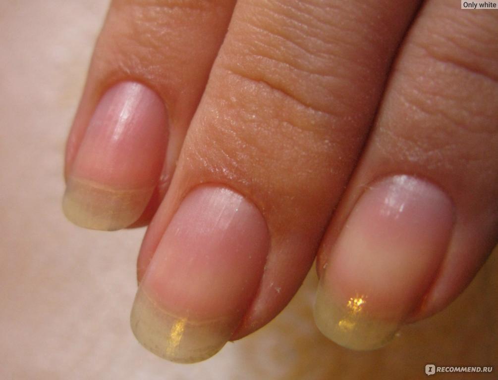 Полечить ногти в домашних условиях 538