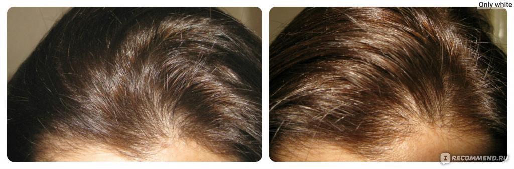 Для пышности волос 5 букв