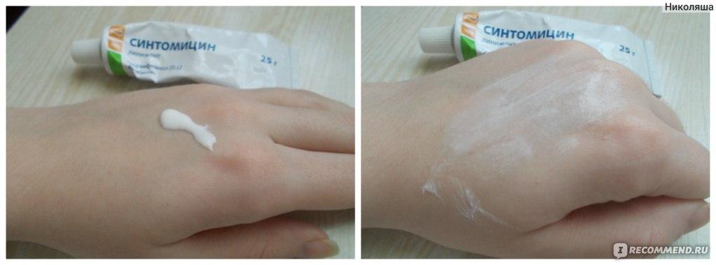 Чем помазать содравшую кожу