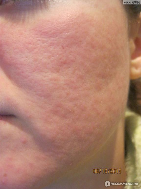 гидрокортизон от аллергии на коже
