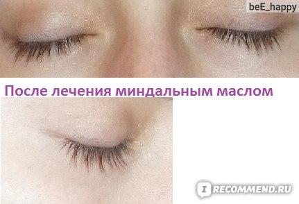 Миндальное масло для лица отзывы косметологов - эффективная косметология