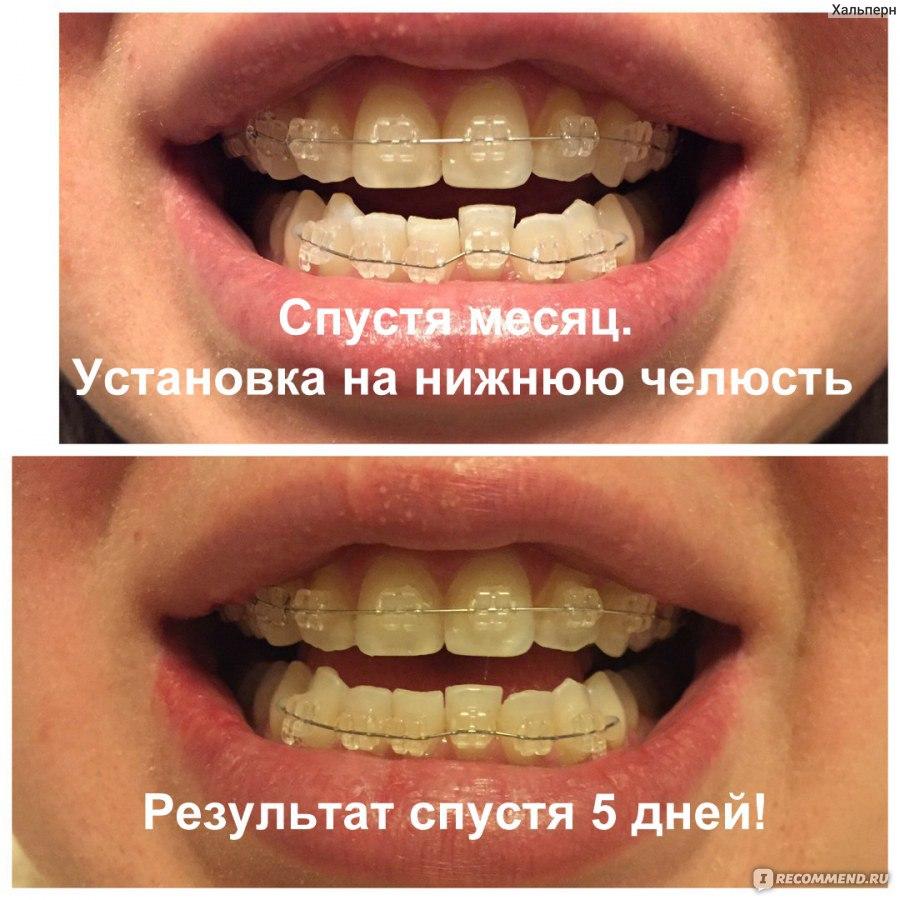 Кому удаляли один зуб для установки брекетов 148