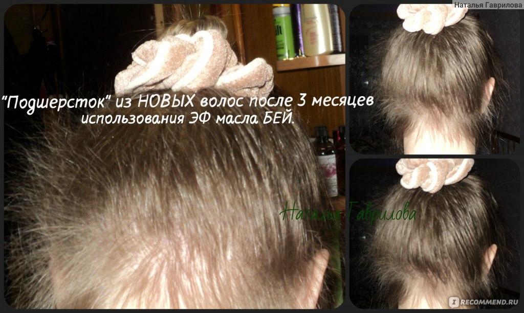 Чтобы быстро росли волосы на голове в домашних условиях