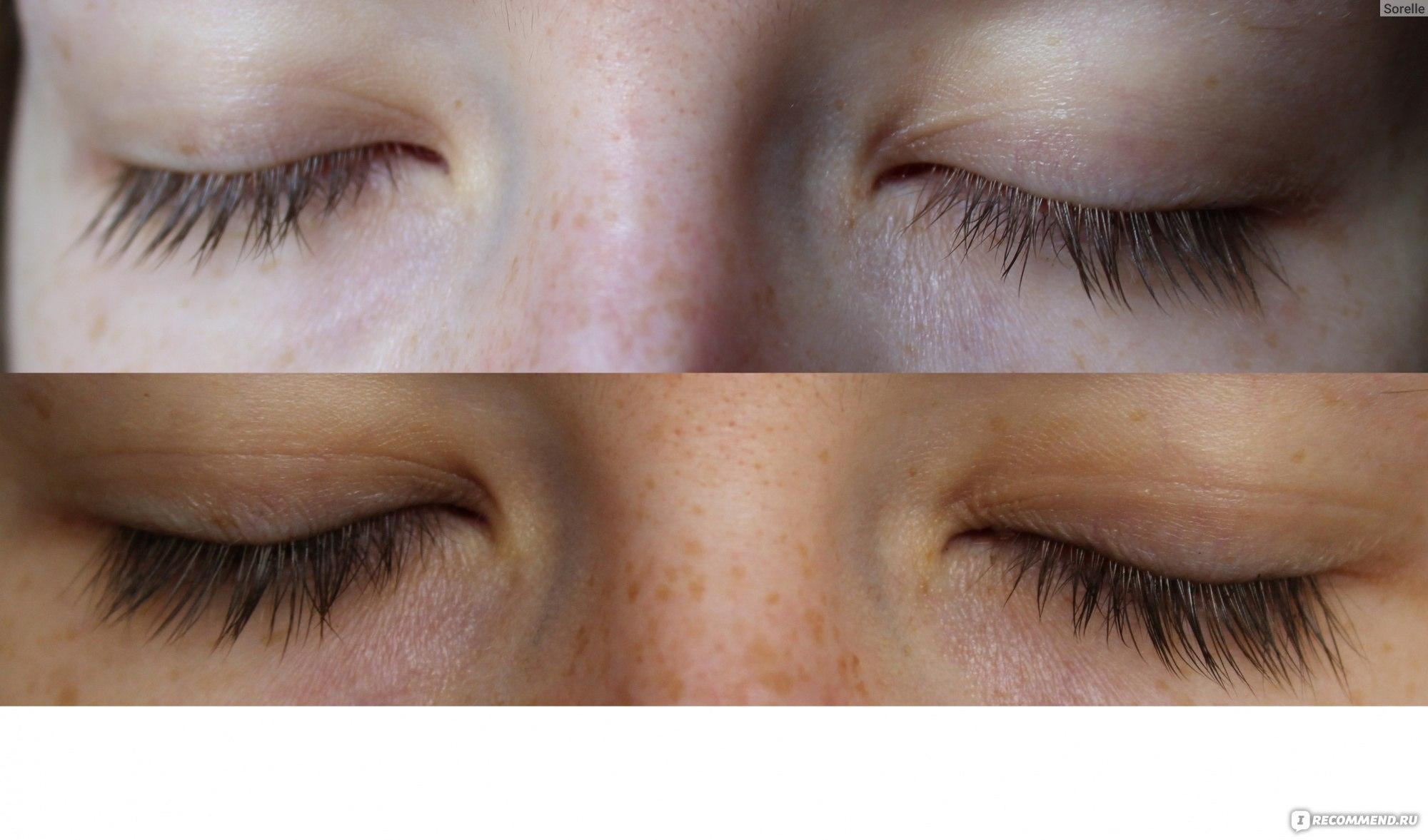 Эффект от касторового масла для ресниц фото до и после