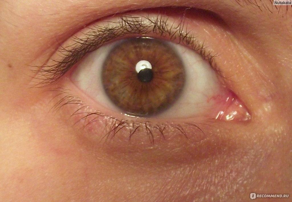 Цена операции на глаза при астигматизме в новосибирске