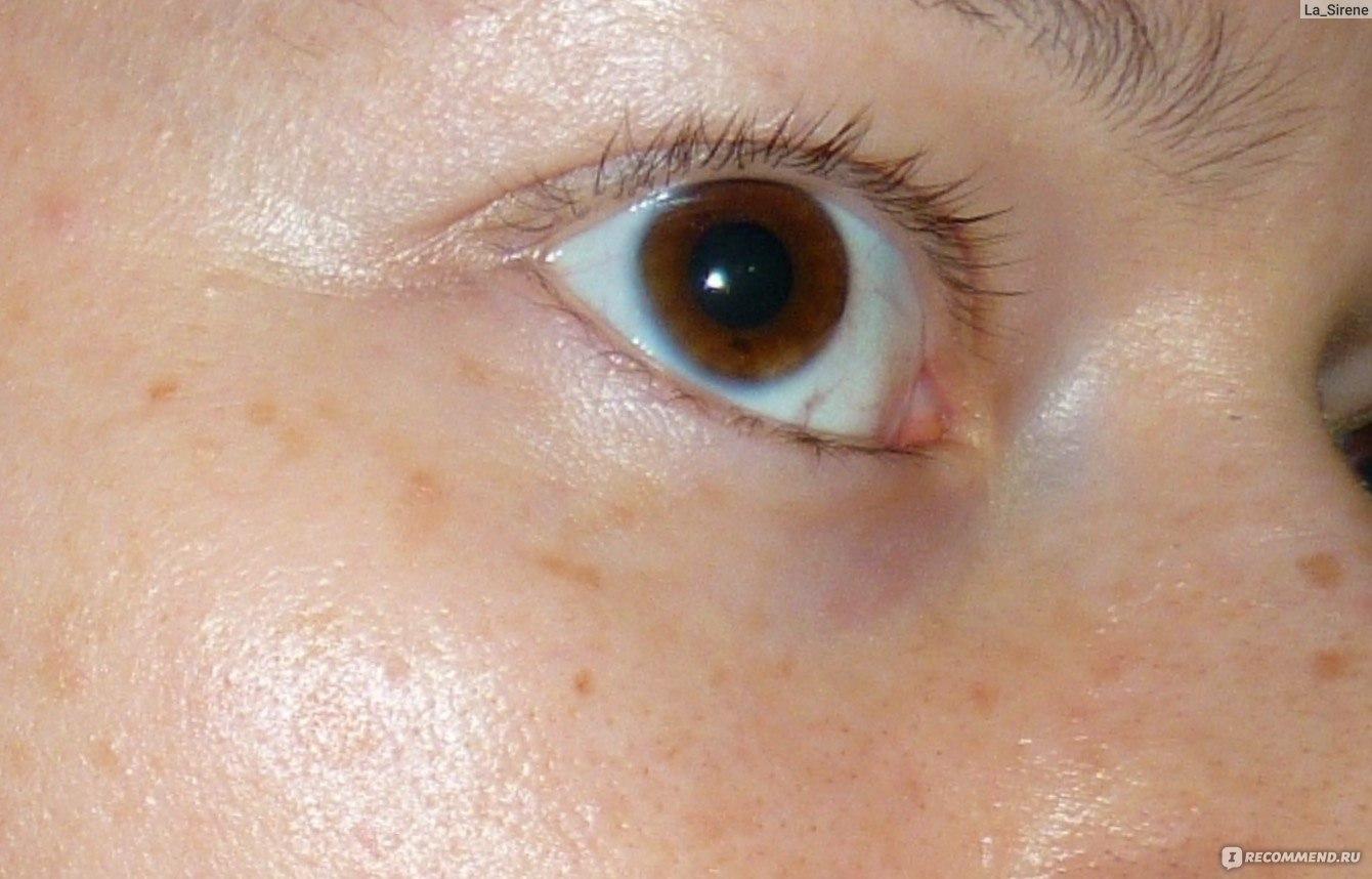 глазные капли визин инструкция