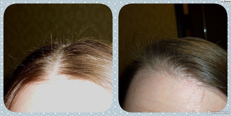Под дарсонвализацией понимается обработка кожи головы при помощи аппарата дарсонваля.