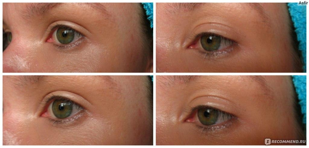 Макияж глаз от синяков с фото